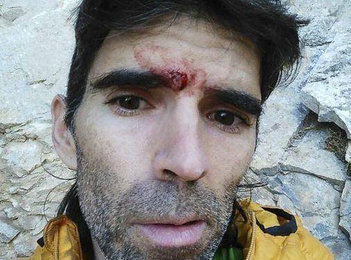 Dani Andrada sangrando tras golpearle un canto que se rompió golpeándole en la ceja. Poco después volvía a intentar Chilam Balam y la encadenaba. 14 abril 2015 (© Dani Andrada)