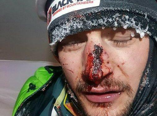 Adam Bielecki, herido tras ser golpeado por una piedra a 5.800 m en el K2 invernal (febrero 2018)
